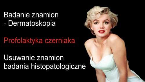dermatiskopia